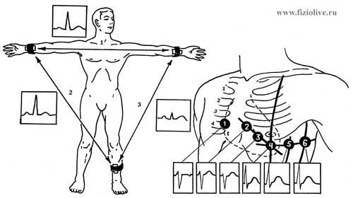 The scheme of electrodes ECG