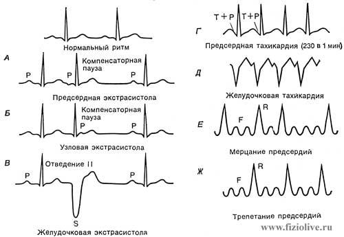 ECG if arrhythmia