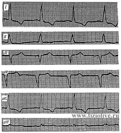 Electrocardiogram 1 in left ventricular hypertrophy