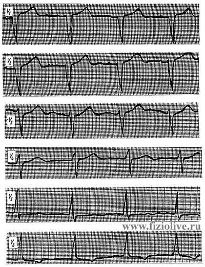 Electrocardiogram 2 in left ventricular hypertrophy
