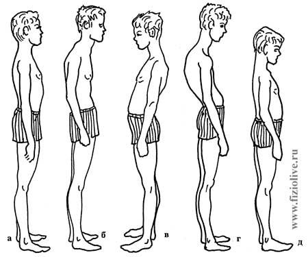 类型的姿势