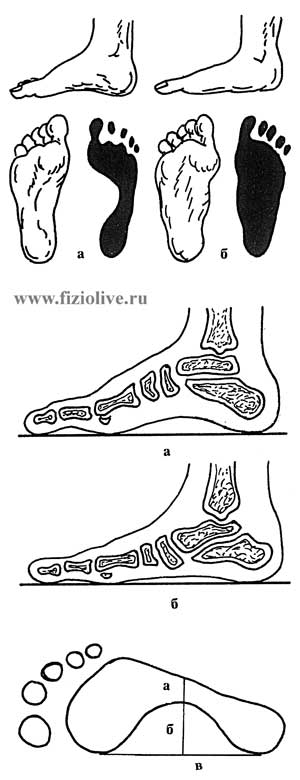 The appearance of the feet and their prints