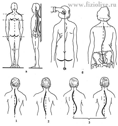 Definition of spinal curvature