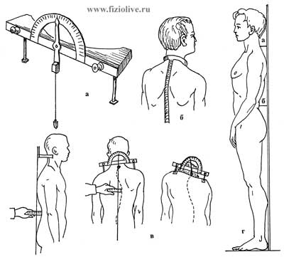 Definition of lateral curvatures of the spine
