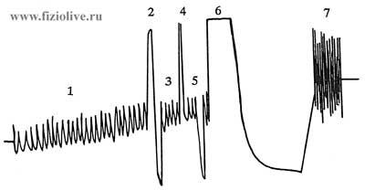 Spirographic study