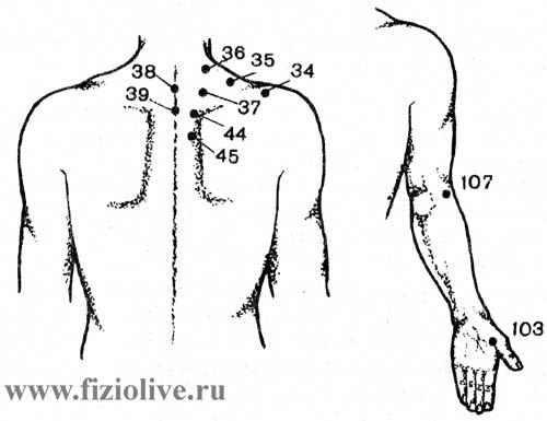 Точки для воздействия при плечелопаточном периартрите