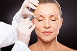 cosmetic surgeon marks the incision lines